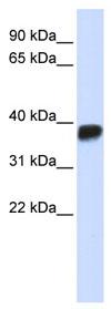 Western blot - LDHA antibody (ab84716)