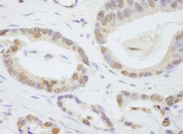 Immunohistochemistry (Formalin/PFA-fixed paraffin-embedded sections) - TAF6 antibody (ab84720)