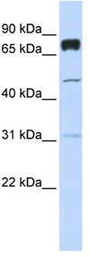 Western blot - PLEKHA4 antibody (ab84727)