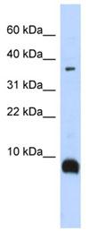 Western blot - Neurokinin B  antibody (ab84729)