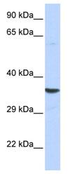 Western blot - LANPL antibody (ab84731)