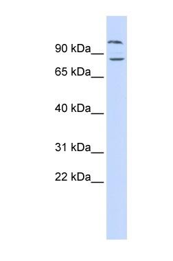 Western blot - DAGLB antibody (ab84733)
