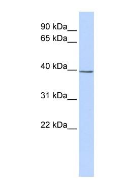 Western blot - SETD3 antibody (ab84734)