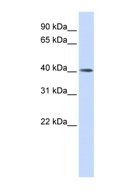 Western blot - MMP20 antibody (ab84737)