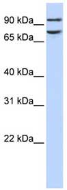 Western blot - FCHO1 antibody (ab84740)