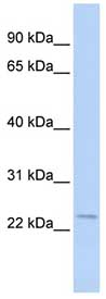 Western blot - STK32A antibody (ab84741)