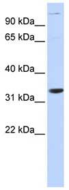 Western blot - PHAPI2 / APRIL antibody (ab84745)