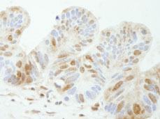 Immunohistochemistry (Formalin/PFA-fixed paraffin-embedded sections) - TDP1 antibody (ab84747)