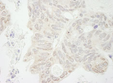 Immunohistochemistry (Formalin/PFA-fixed paraffin-embedded sections) - Anti-EHMT1/GLP antibody (ab84751)