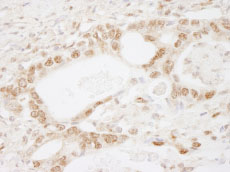 Immunohistochemistry (Formalin/PFA-fixed paraffin-embedded sections) - MBD2 antibody (ab84753)