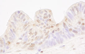 Immunohistochemistry (Formalin/PFA-fixed paraffin-embedded sections) - MBD4 antibody (ab84754)