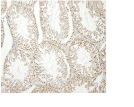 Immunohistochemistry (Formalin/PFA-fixed paraffin-embedded sections) - HNRPUL1 antibody (ab84774)