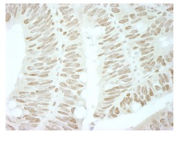 Immunohistochemistry (Formalin/PFA-fixed paraffin-embedded sections) - Brd4 antibody (ab84776)