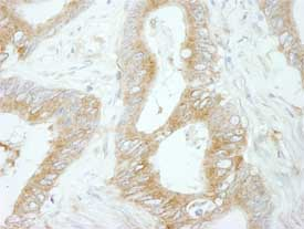 Immunohistochemistry (Formalin/PFA-fixed paraffin-embedded sections) - Flightless I antibody (ab84778)