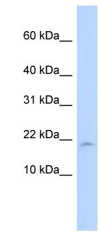 Western blot - LAIR2 antibody (ab84807)