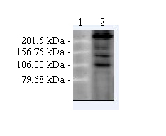 Western blot - Anti-CACNA1C [S57-46] antibody (ab84814)