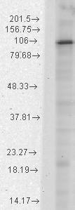 Western blot - HCN1 antibody [S70-28] (ab84816)