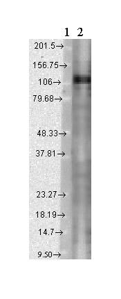 Western blot - KCNC1 antibody [S16B-8] (ab84823)