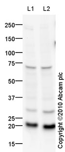 Western blot - Rac1 antibody (ab84838)