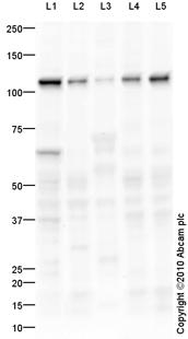 Western blot - LAMP2 antibody (ab84844)