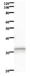 Western blot - ZNF83 antibody [3427C2a] (ab84848)