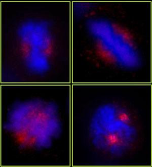 Immunocytochemistry/ Immunofluorescence - CEP78 antibody (ab84867)