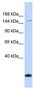 Western blot - MRP3 antibody (ab84887)