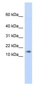 Western blot - C11ORF67 antibody (ab84891)