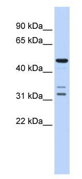 Western blot - htrA4 antibody (ab84894)