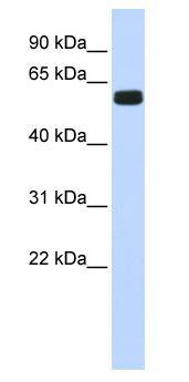 Western blot - HIC2 antibody (ab84899)