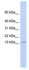 Western blot - Transmembrane protein 93 antibody (ab84902)