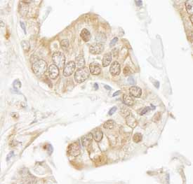 Immunohistochemistry (Formalin/PFA-fixed paraffin-embedded sections) - Rad9 antibody (ab84912)