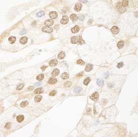 Immunohistochemistry (Formalin/PFA-fixed paraffin-embedded sections) - HRPT2 antibody (ab84916)