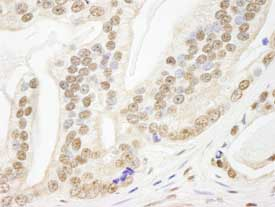 Immunohistochemistry (Formalin/PFA-fixed paraffin-embedded sections) - PDS5B antibody (ab84918)