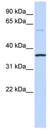Western blot - C16ORF46 antibody (ab84921)