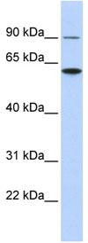 Western blot - ATL3 antibody (ab84922)