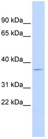 Western blot - DUSP12 antibody (ab84924)