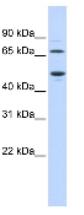 Western blot - TDO2 antibody (ab84926)