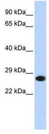 Western blot - Proteasome 20S alpha 2 antibody (ab84933)