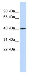 Western blot - PARP11 antibody (ab84935)