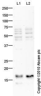Western blot - Anti-MAP1LC3A antibody (ab84936)