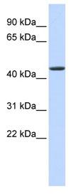 Western blot - JMJD4 antibody (ab84937)