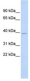 Western blot - SAMD8 antibody (ab84940)
