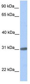 Western blot - C7ORF61 antibody (ab84941)