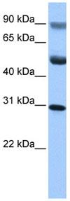 Western blot - C17ORF39 antibody (ab84943)