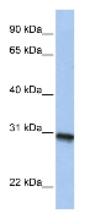 Western blot - C20orf195 antibody (ab84944)