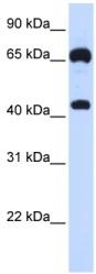Western blot - Guanylyl Cyclase beta 1 antibody (ab84955)