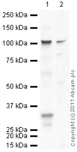 Western blot - Anti-Collagen I antibody (ab84956)