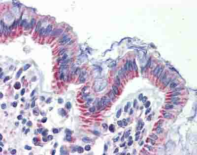 Immunohistochemistry (Formalin/PFA-fixed paraffin-embedded sections) - Anti-IMPDH1 antibody (ab84957)