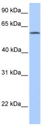 Western blot - ACSBG2 antibody (ab84958)